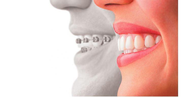 Get Beautiful Teeth