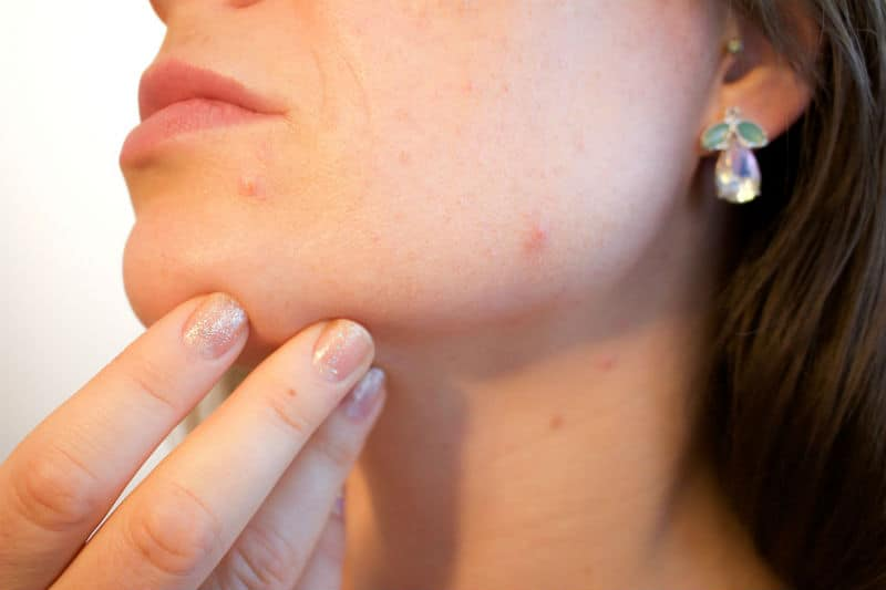 How To Minimize Acne Scars #surgery #scarring #heal #beauty #beverlyhills #beverlyhillsmagazine #bevhillsmag