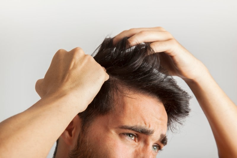 How To Handle Hair Loss Properly #hairthinning #hairloss #balding #beauty
