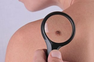 How To Remove Skin Tags With Natural Treatment #skin #skintags #moles #health #beverlyhills #beverlyhillsmagazine #bevhillsmag