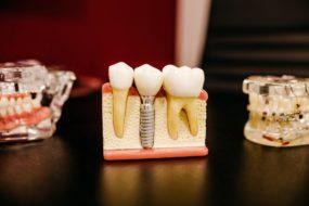 3 ways to take better care of your teeth:#keepingyourteethclean #takingcareofyourteeth #beverlyhillsmagazine #beverlyhills #dentist #naturaltoothpaste #toothwhitening
