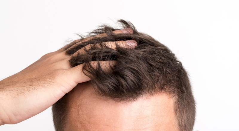 What To Do When Your Hair Starts Thinning #hair #hairthinning #hairloss #beauty #grooming
