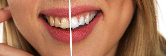 How to Keep Your Teeth Healthier #health #beauty #smile #teeth #beverlyhills #bevhillsmag #beverlyhillsmagazine
