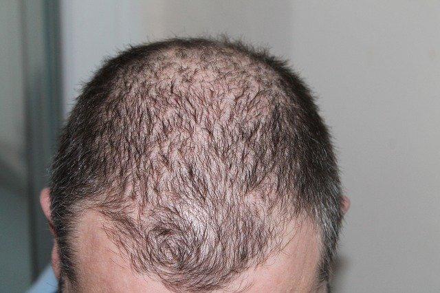 LLLT vs Hair Transplants for Hair Loss #hair #beauty #beverlyhills #bevhillsmag